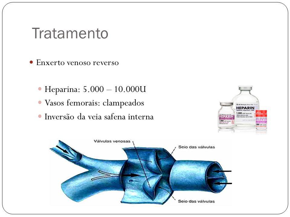 Tratamento  Enxerto venoso reverso  Heparina: 5.000 – 10.000U  Vasos femorais: clampeados  Inversão da veia safena interna