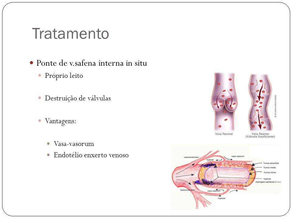Tratamento  Ponte de v.safena interna in situ  Próprio leito  Destruição de válvulas  Vantagens:  Vasa-vasorum  Endotélio enxerto venoso