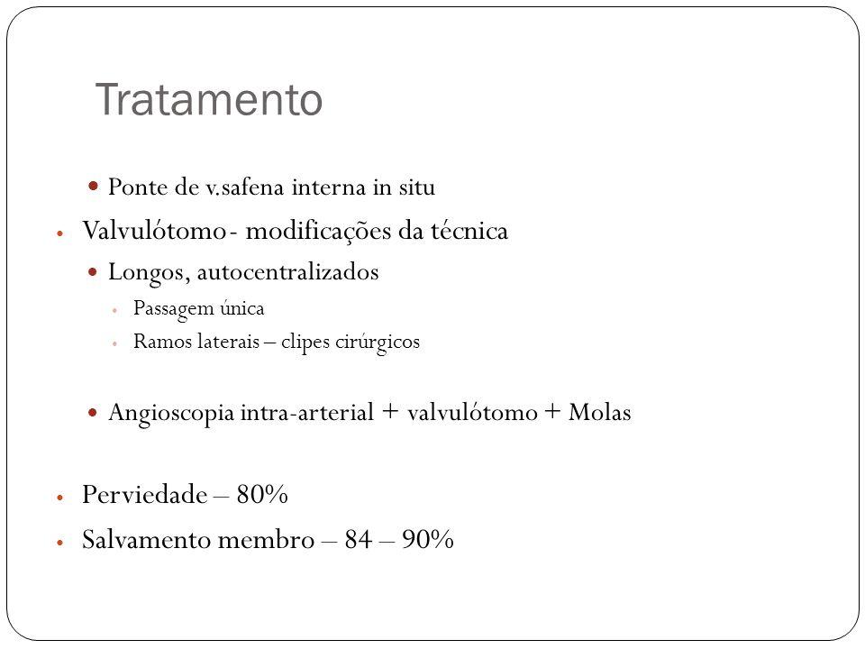 Tratamento  Ponte de v.safena interna in situ  Valvulótomo- modificações da técnica  Longos, autocentralizados  Passagem única  Ramos laterais –