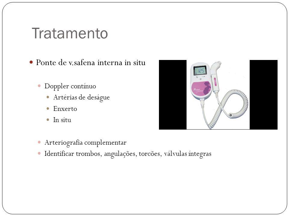 Tratamento  Ponte de v.safena interna in situ  Doppler contínuo  Artérias de deságue  Enxerto  In situ  Arteriografia complementar  Identificar