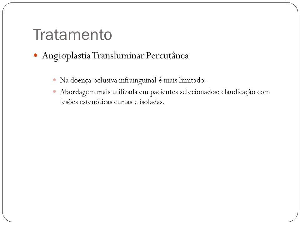 Tratamento  Angioplastia Transluminar Percutânea  Na doença oclusiva infrainguinal é mais limitado.  Abordagem mais utilizada em pacientes selecion