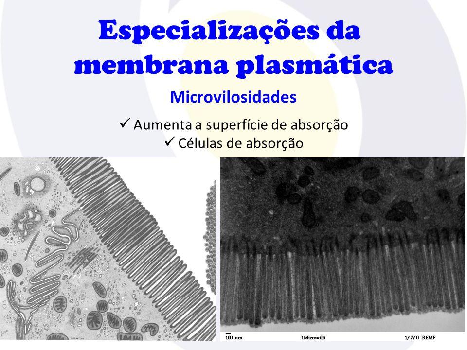 Especializações da membrana plasmática Zônulas de oclusão  Evita a passagem de substâncias entre as células  Células intestinais