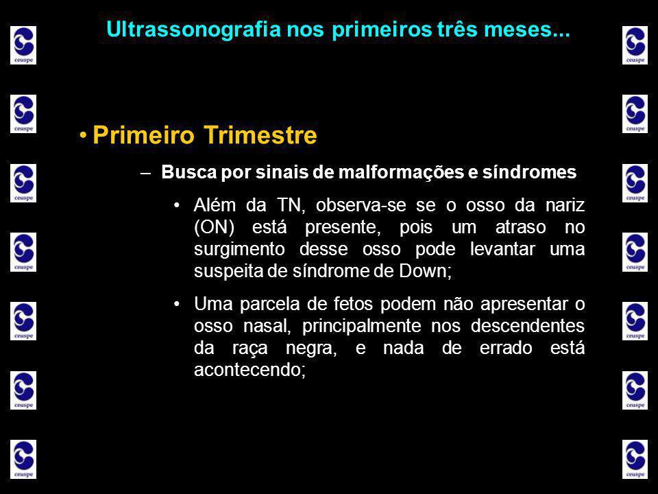 Ultrassonografia nos primeiros três meses... •Primeiro Trimestre –Busca por sinais de malformações e síndromes •Além da TN, observa-se se o osso da na