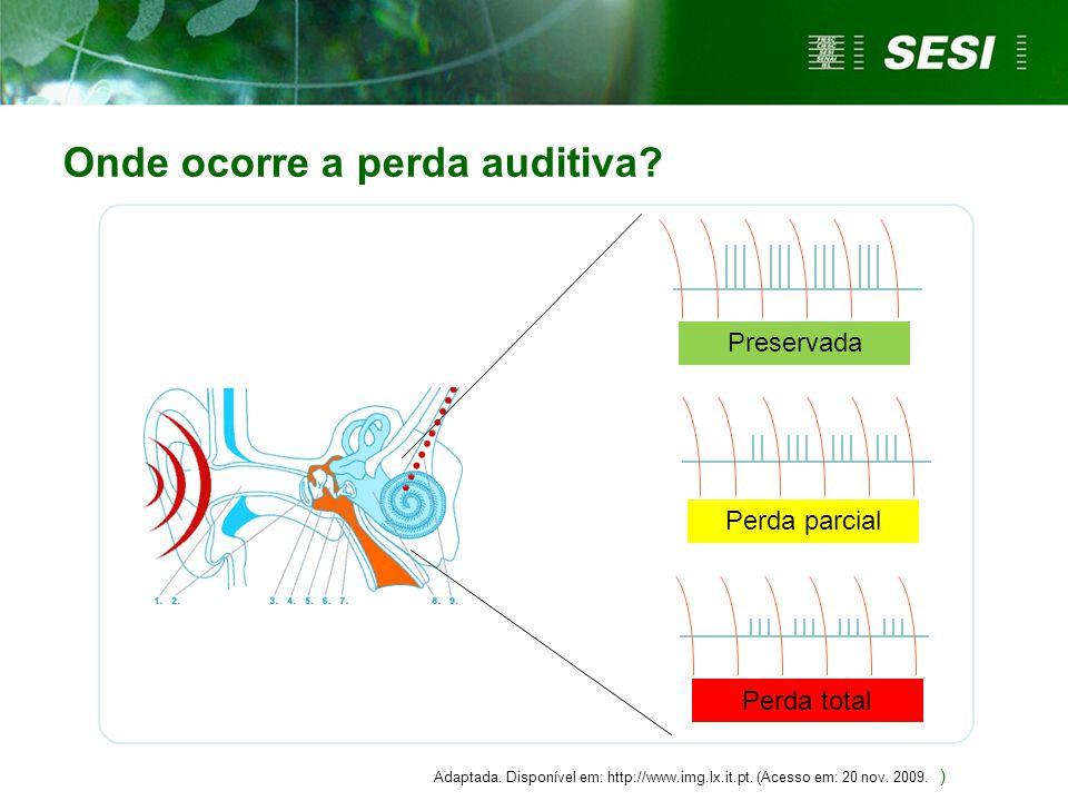 Perda auditiva induzida por níveis de pressão sonora elevados - PAINPSE  É a perda provocada pela exposição por tempo prolongado ao ruído.