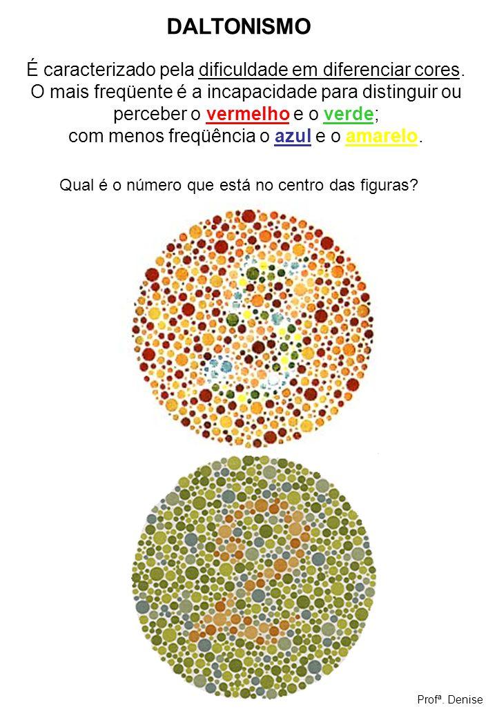 É caracterizado pela dificuldade em diferenciar cores. O mais freqüente é a incapacidade para distinguir ou perceber o vermelho e o verde; com menos f