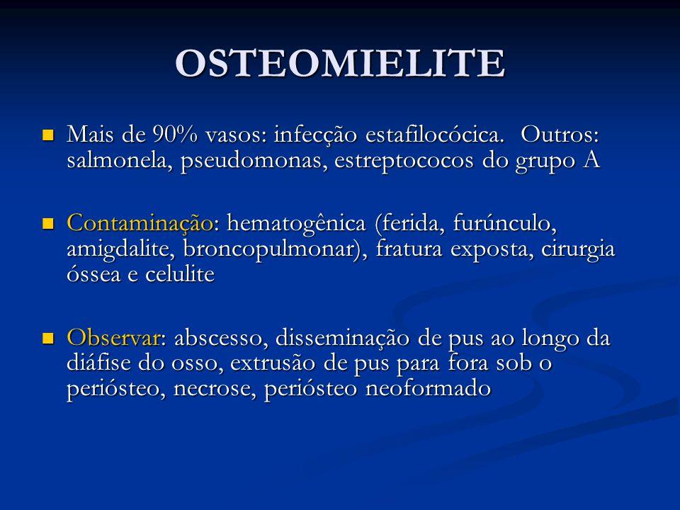 OSTEOMIELITE Mais de 90% vasos: infecção estafilocócica. Outros: salmonela, pseudomonas, estreptococos do grupo A Mais de 90% vasos: infecção estafilo