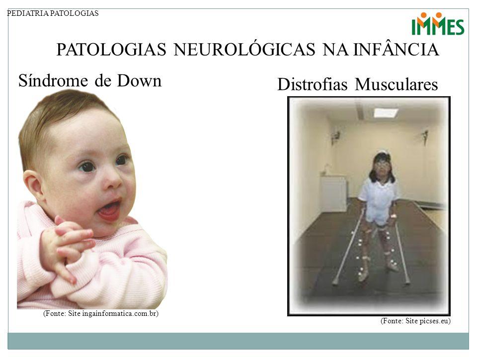 PATOLOGIAS NEUROLÓGICAS NA INFÂNCIA PEDIATRIA PATOLOGIAS Síndrome de Down (Fonte: Site ingainformatica.com.br) Distrofias Musculares (Fonte: Site pics