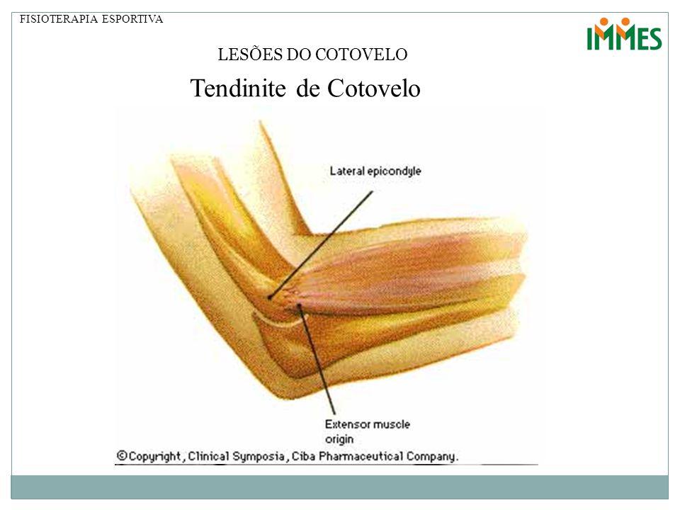 FISIOTERAPIA ESPORTIVA LESÕES DO COTOVELO Tendinite de Cotovelo