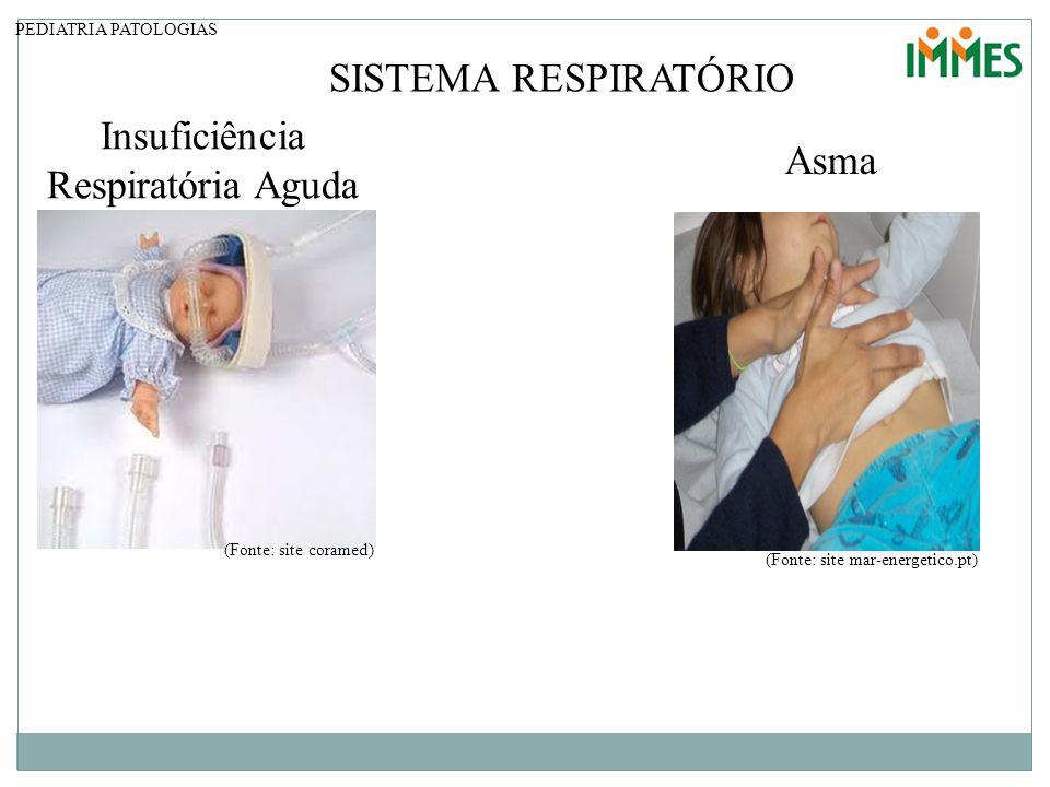 PEDIATRIA PATOLOGIAS SISTEMA RESPIRATÓRIO Insuficiência Respiratória Aguda (Fonte: site coramed) Asma (Fonte: site mar-energetico.pt)