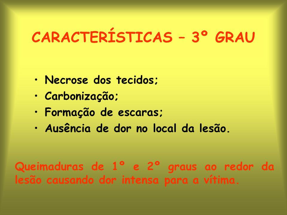 CARACTERÍSTICAS – 3º GRAU Necrose dos tecidos; Carbonização; Formação de escaras; Ausência de dor no local da lesão.