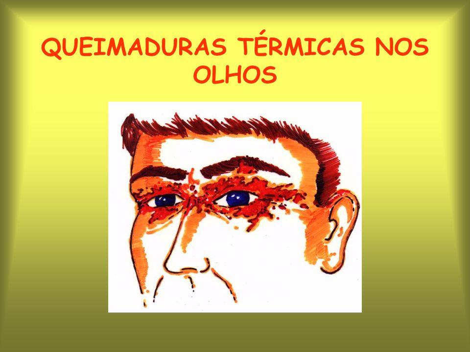 QUEIMADURAS TÉRMICAS NOS OLHOS