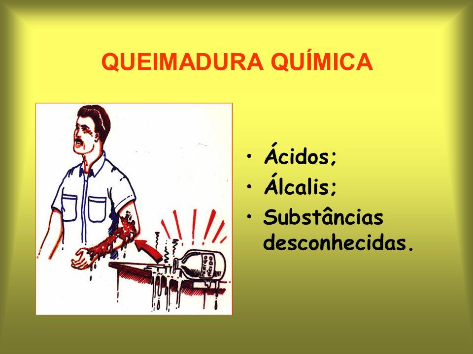 QUEIMADURA QUÍMICA Ácidos; Álcalis; Substâncias desconhecidas.
