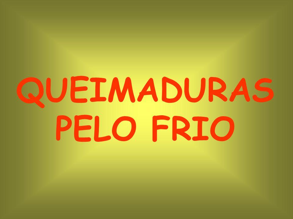 QUEIMADURAS PELO FRIO