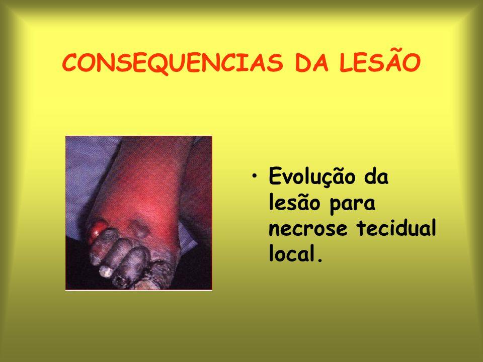 CONSEQUENCIAS DA LESÃO Evolução da lesão para necrose tecidual local.