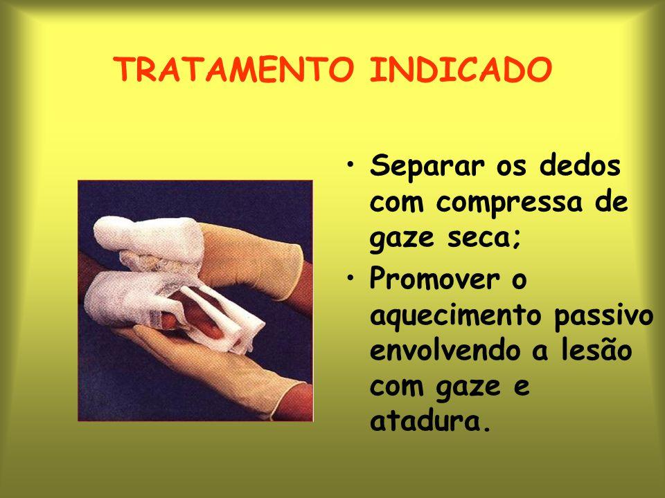 TRATAMENTO INDICADO Separar os dedos com compressa de gaze seca; Promover o aquecimento passivo envolvendo a lesão com gaze e atadura.