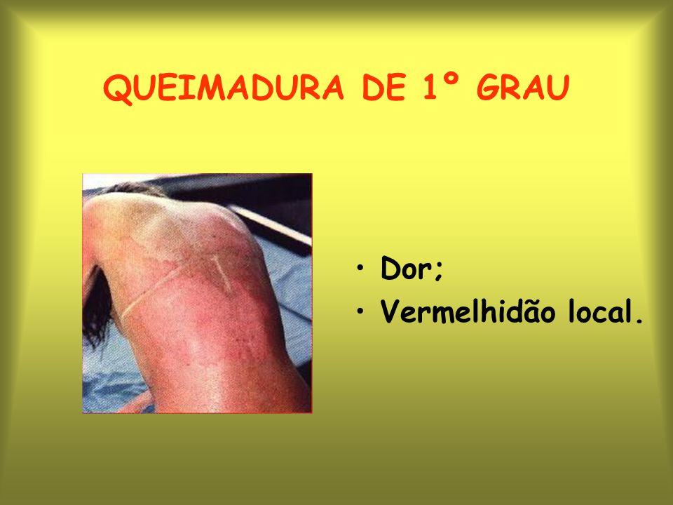 QUEIMADURA DE 2º GRAU Dor; Vermelhidão; Bolhas.
