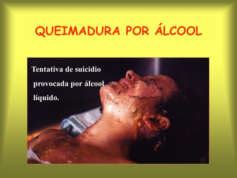 QUEIMADURA POR ÁLCOOL Tentativa de suicídio provocada por álcool líquido.
