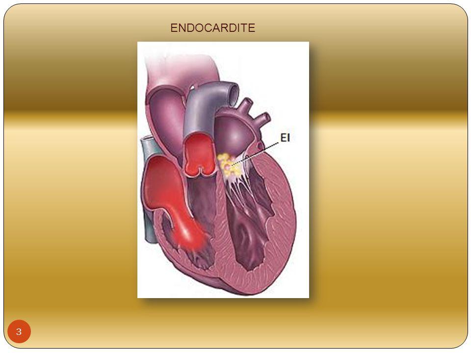 PERICARDITE Inflamação do pericárdio (saco membranoso que envolve o coração) Tem várias causas como etiologia (pós cirurgia cardíaca, IAM, doença neoplásica, lúpus, infecção viral) Restringe a capacidade do coração de se encher de sangue 14