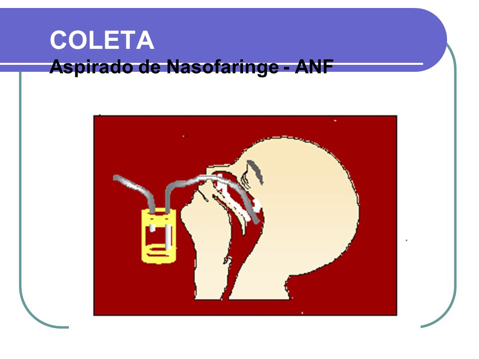 ANF COLETA Aspirado de Nasofaringe – ANF ou Naso e Orofaringe SONDAS