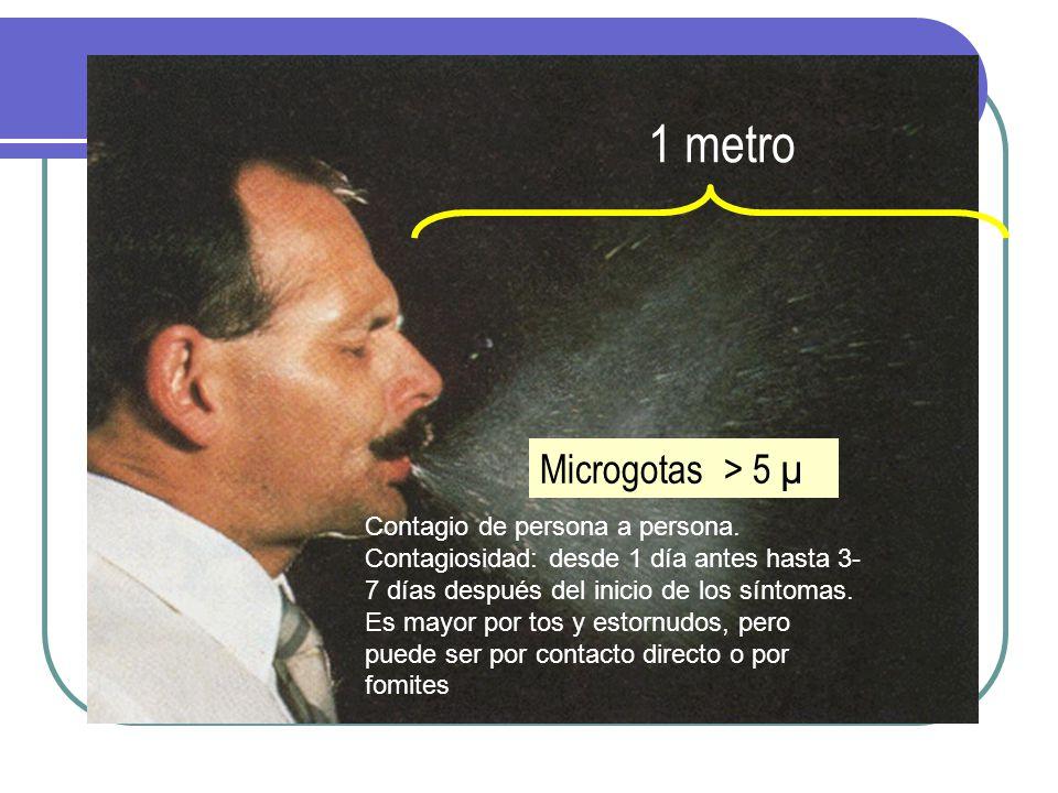 Patogenia Microgotas > 5 µ Contagio de persona a persona.