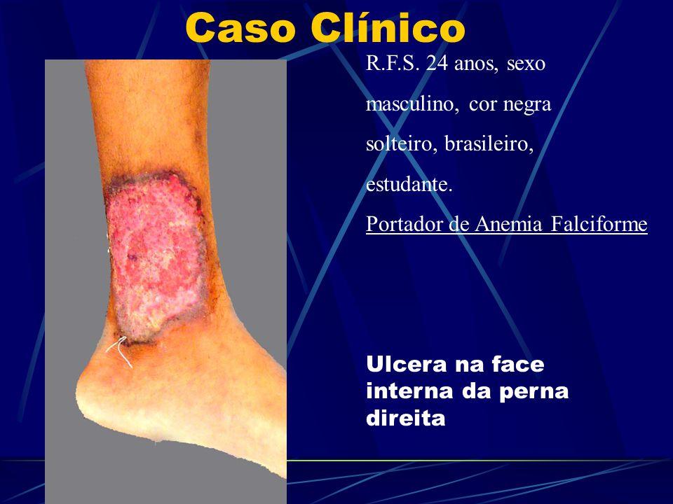 R.F.S. 24 anos, sexo masculino, cor negra solteiro, brasileiro, estudante. Portador de Anemia Falciforme Ulcera na face interna da perna direita Caso