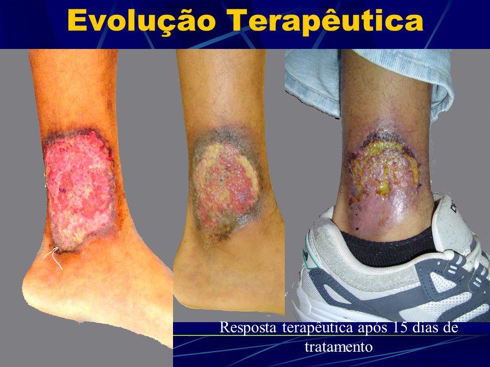 Evolução Terapêutica Resposta terapêutica após 15 dias de tratamento