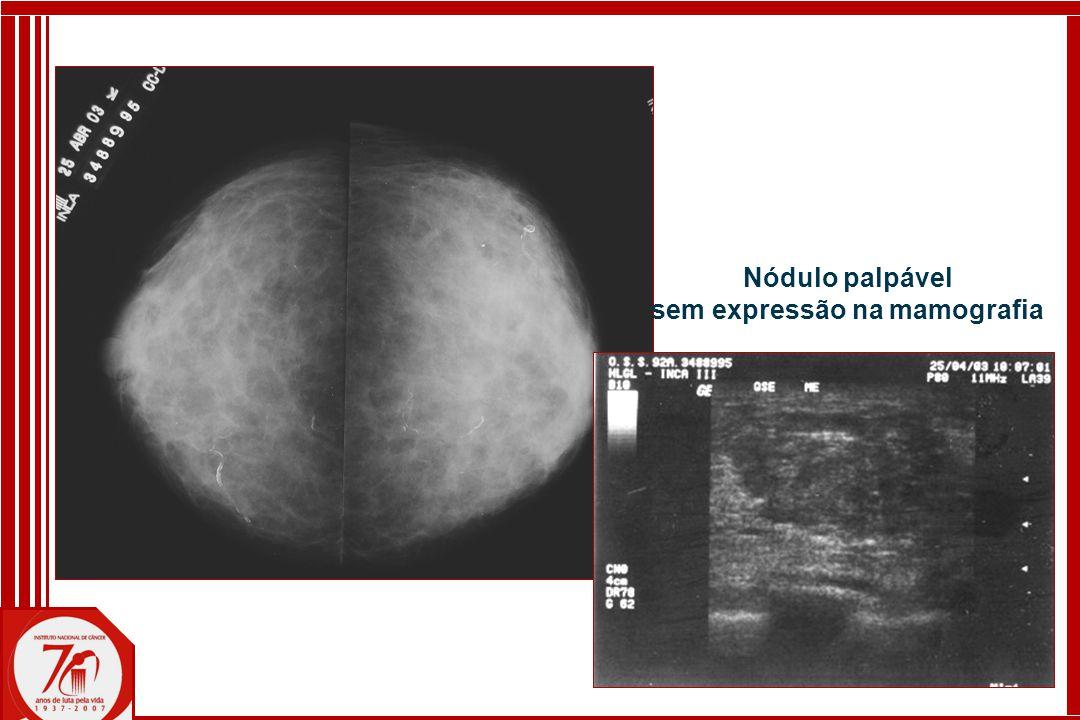 Nódulo palpável sem expressão na mamografia