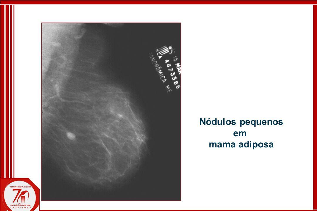 Nódulos pequenos em mama adiposa