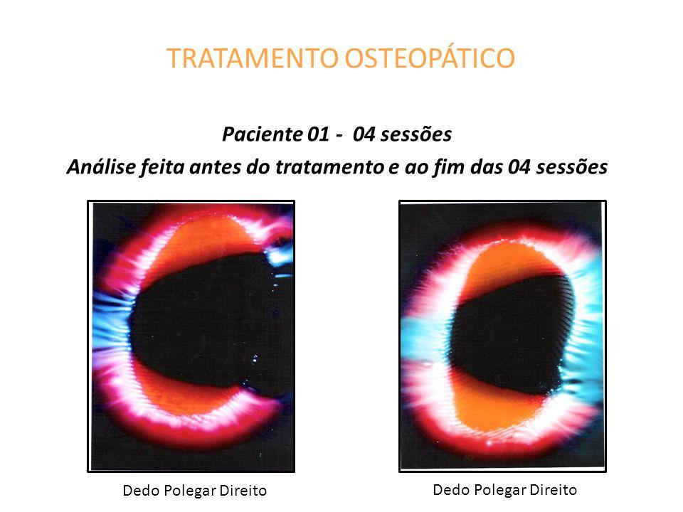 TRATAMENTO OSTEOPÁTICO Paciente 01 - 04 sessões Análise feita antes do tratamento e ao fim das 04 sessões Dedo Polegar Direito