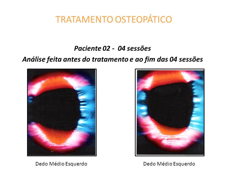 TRATAMENTO OSTEOPÁTICO Paciente 02 - 04 sessões Análise feita antes do tratamento e ao fim das 04 sessões Dedo Médio Esquerdo