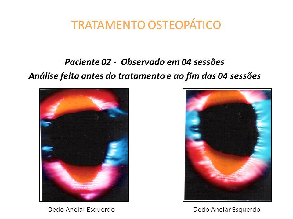 TRATAMENTO OSTEOPÁTICO Paciente 02 - Observado em 04 sessões Análise feita antes do tratamento e ao fim das 04 sessões Dedo Anelar Esquerdo