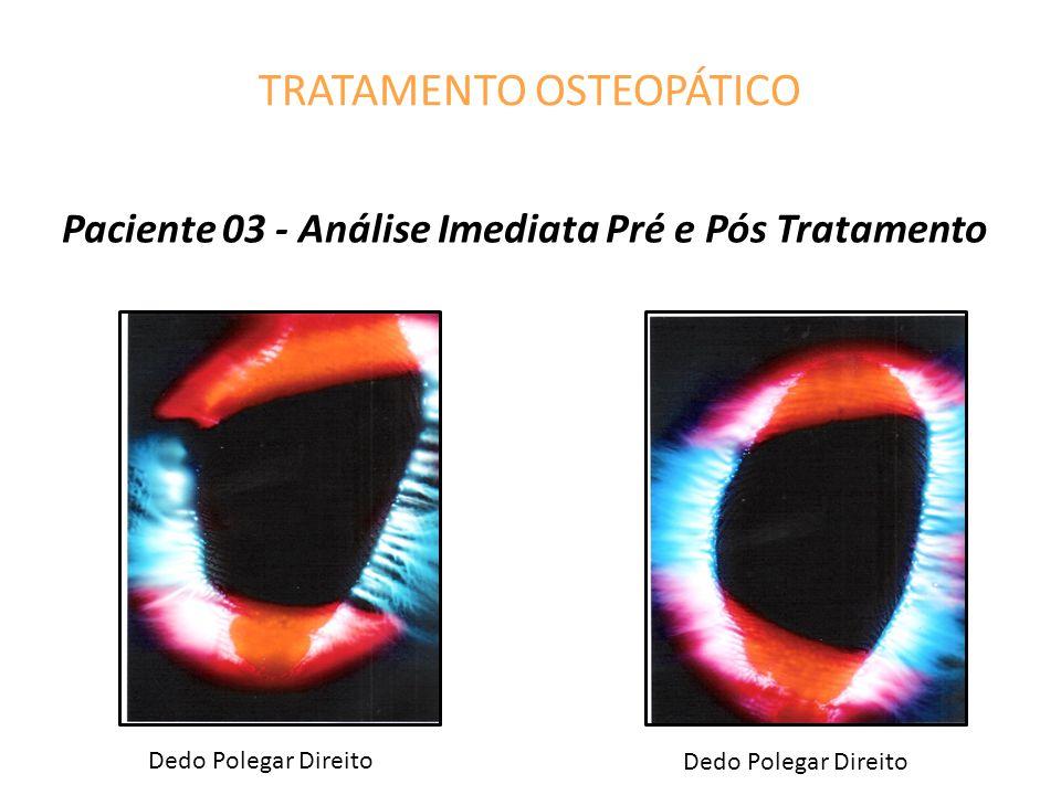 TRATAMENTO OSTEOPÁTICO Paciente 03 - Análise Imediata Pré e Pós Tratamento Dedo Polegar Direito