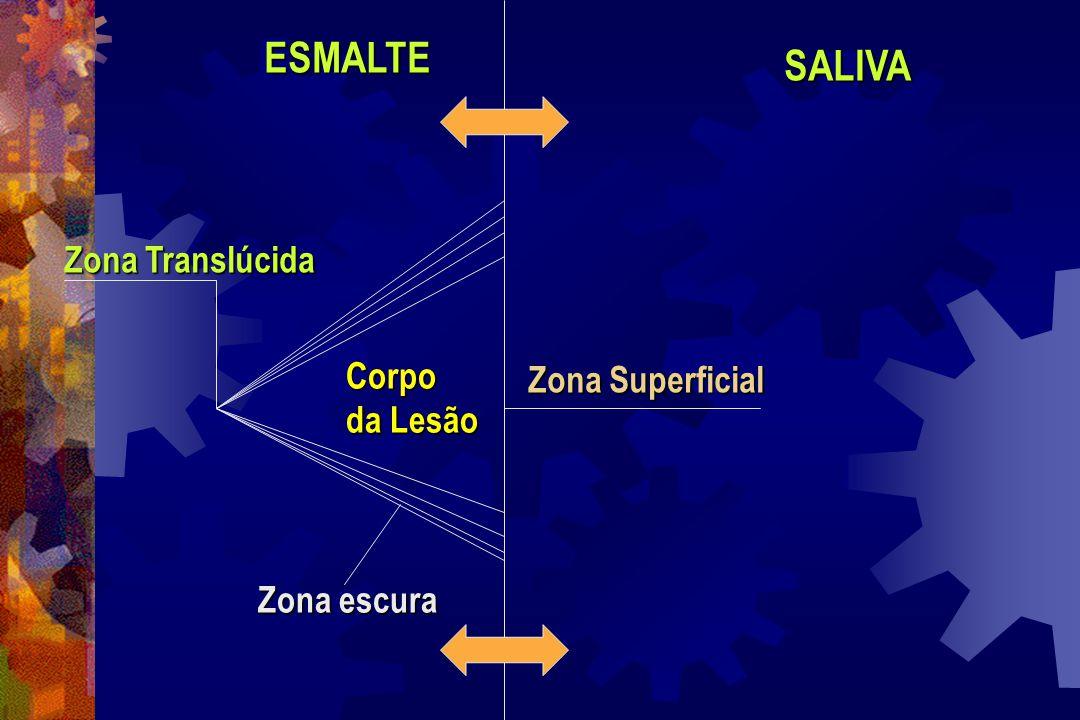 Análise Ultra-Estrutural  Zona Superficial: Filtro de microporos, contato direto com meio ambiente bucal, onde ocorrem as trocas iônicas;  Corpo da