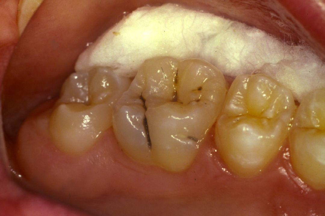 Estudo da Doença Cárie Dentária I Conceitos - Etiologia Prof. Urubatan Medeiros Profa. Mariana Passos Prof. Rodrigo J. Profa. Carolina B.