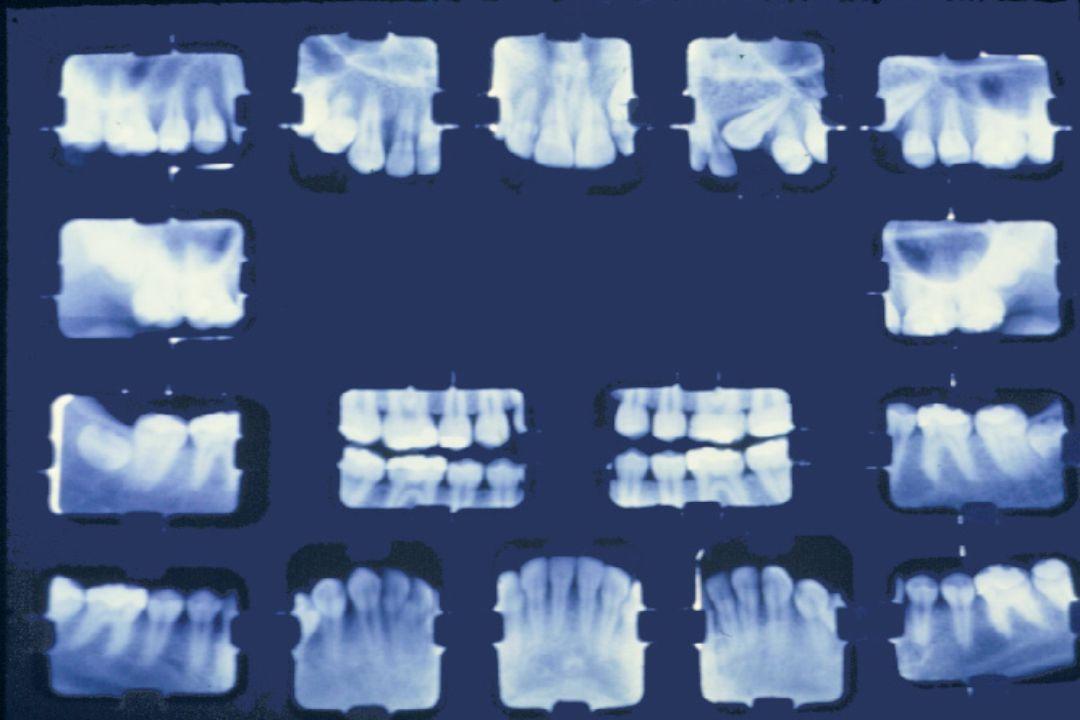  Base para detecção radiográfica: perda mineral dos tecidos dentários duros.  Exame radiográfico: informações importantes de lesão de cárie proximal