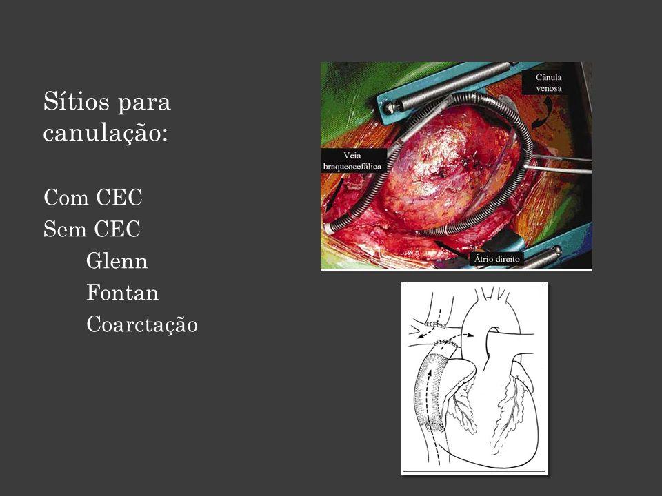 Artéria Femoral: 50's Fácil canulação e correção de complicações locais Canulação anterior à esternotomia Mini toracotomias e video- assistidas Maior incidência de embolia 1)Price DL, Harris J.