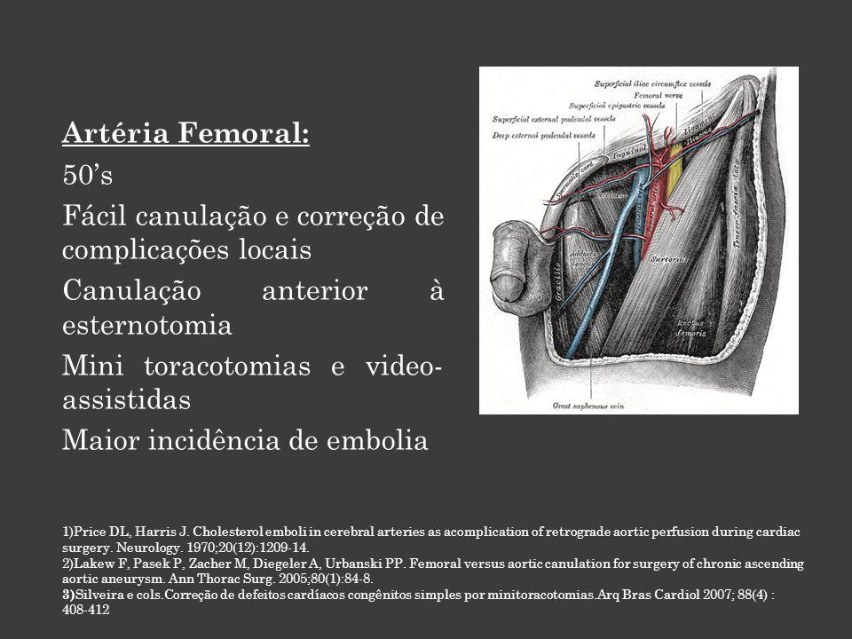 Artéria Femoral: 50's Fácil canulação e correção de complicações locais Canulação anterior à esternotomia Mini toracotomias e video- assistidas Maior