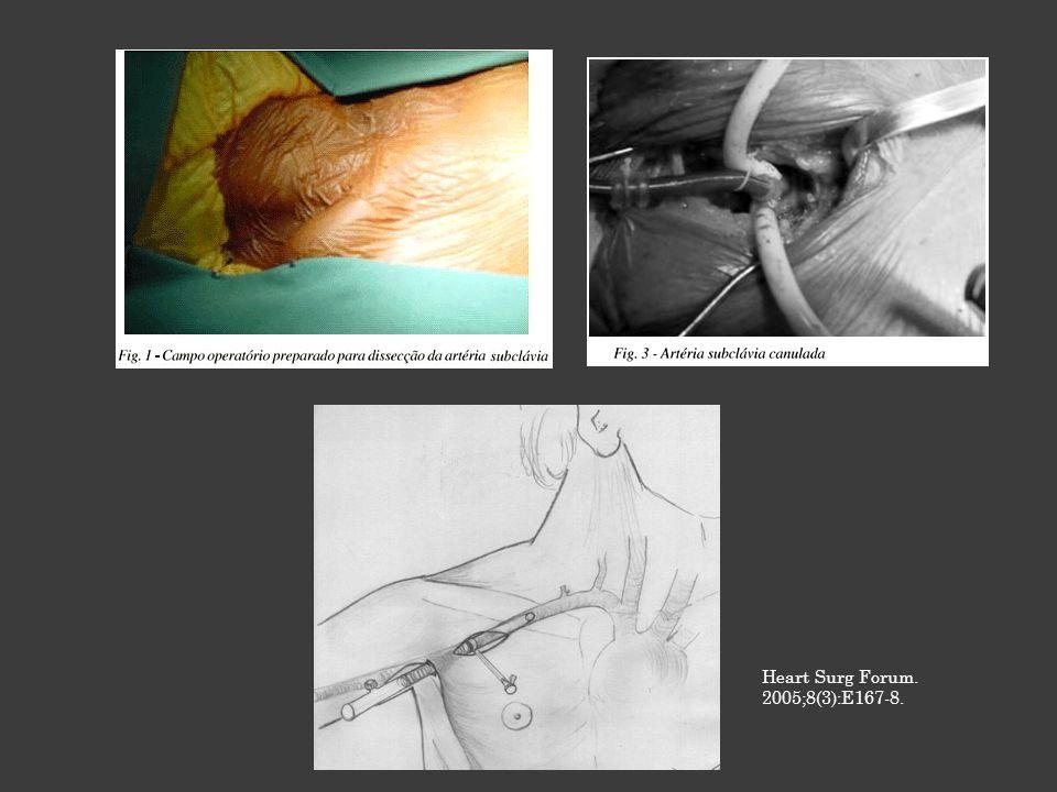 Artéria Braquial: 181 pacientes 3,3% de complicações arteriais Incisão em sulco bicipital na fossa axilar Küçüker SA, Ozatik MA, Saritas A, Tasdemir O.