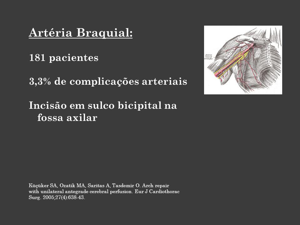Artéria Braquial: 181 pacientes 3,3% de complicações arteriais Incisão em sulco bicipital na fossa axilar Küçüker SA, Ozatik MA, Saritas A, Tasdemir O