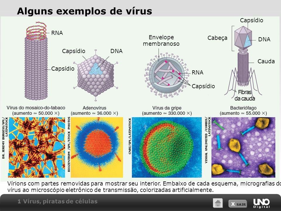 X SAIR Alguns exemplos de vírus Vírions com partes removidas para mostrar seu interior. Embaixo de cada esquema, micrografias do vírus ao microscópio