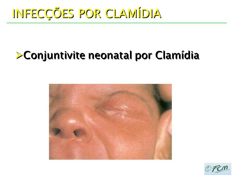  Conjuntivite neonatal por Clamídia INFECÇÕES POR CLAMÍDIA