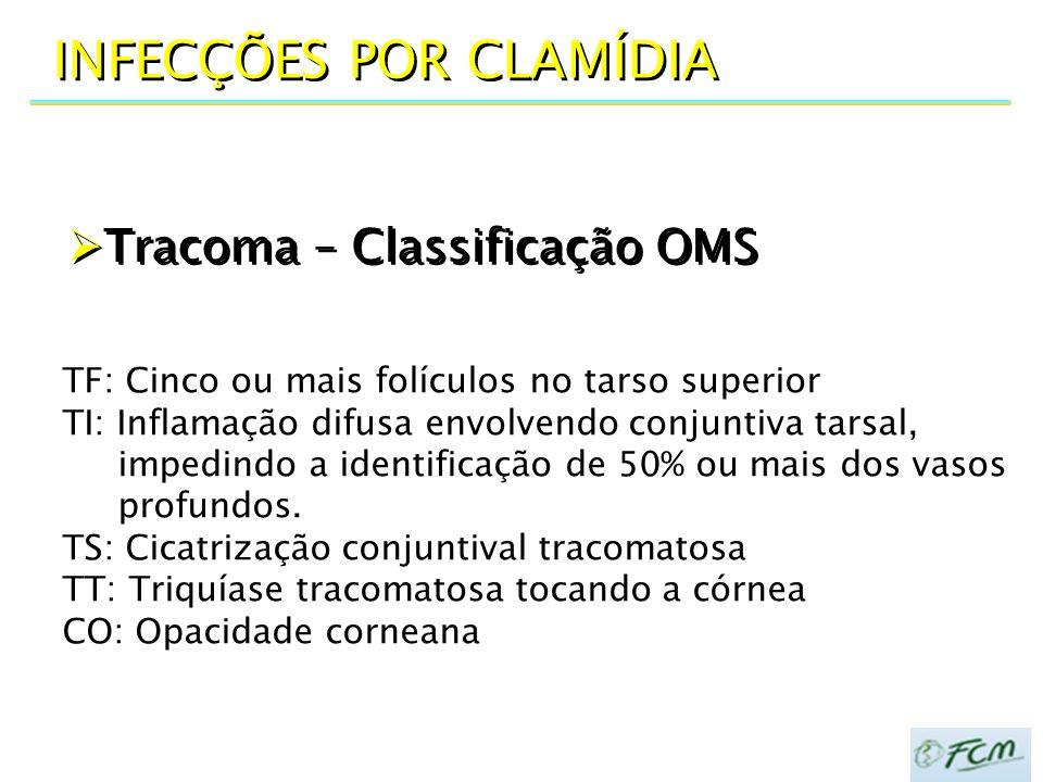  Tracoma – Classificação OMS INFECÇÕES POR CLAMÍDIA TF: Cinco ou mais folículos no tarso superior TI: Inflamação difusa envolvendo conjuntiva tarsal,