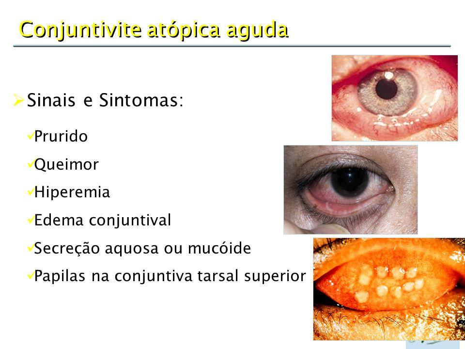 Conjuntivite atópica aguda  Sinais e Sintomas: Prurido Queimor Hiperemia Edema conjuntival Secreção aquosa ou mucóide Papilas na conjuntiva tarsal su