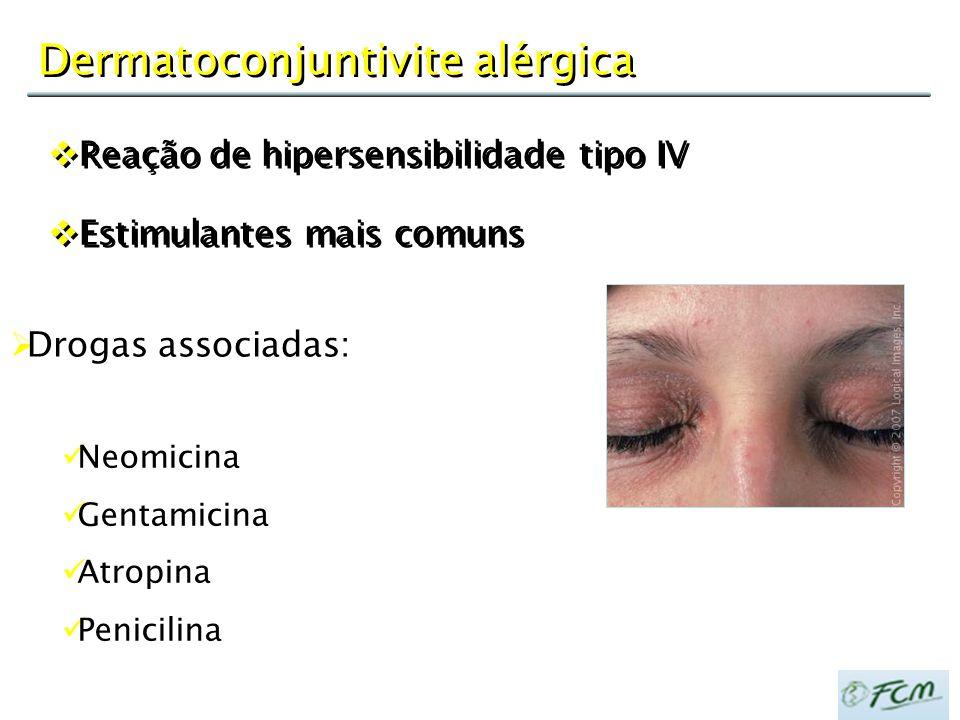 Dermatoconjuntivite alérgica  Reação de hipersensibilidade tipo IV  Estimulantes mais comuns  Reação de hipersensibilidade tipo IV  Estimulantes m