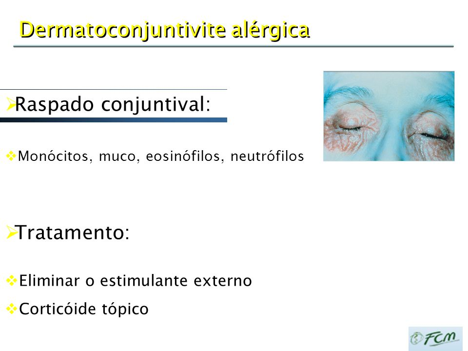 Dermatoconjuntivite alérgica  Tratamento:  Eliminar o estimulante externo  Corticóide tópico  Raspado conjuntival:  Monócitos, muco, eosinófilos,