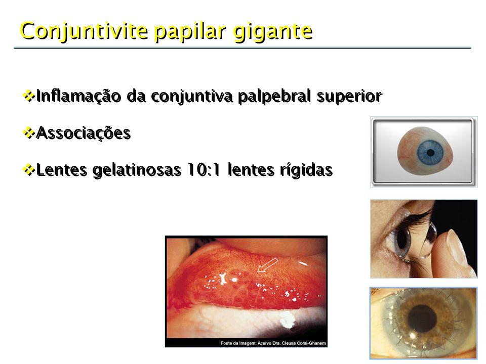 Conjuntivite papilar gigante  Inflamação da conjuntiva palpebral superior  Associações  Lentes gelatinosas 10:1 lentes rígidas  Inflamação da conj
