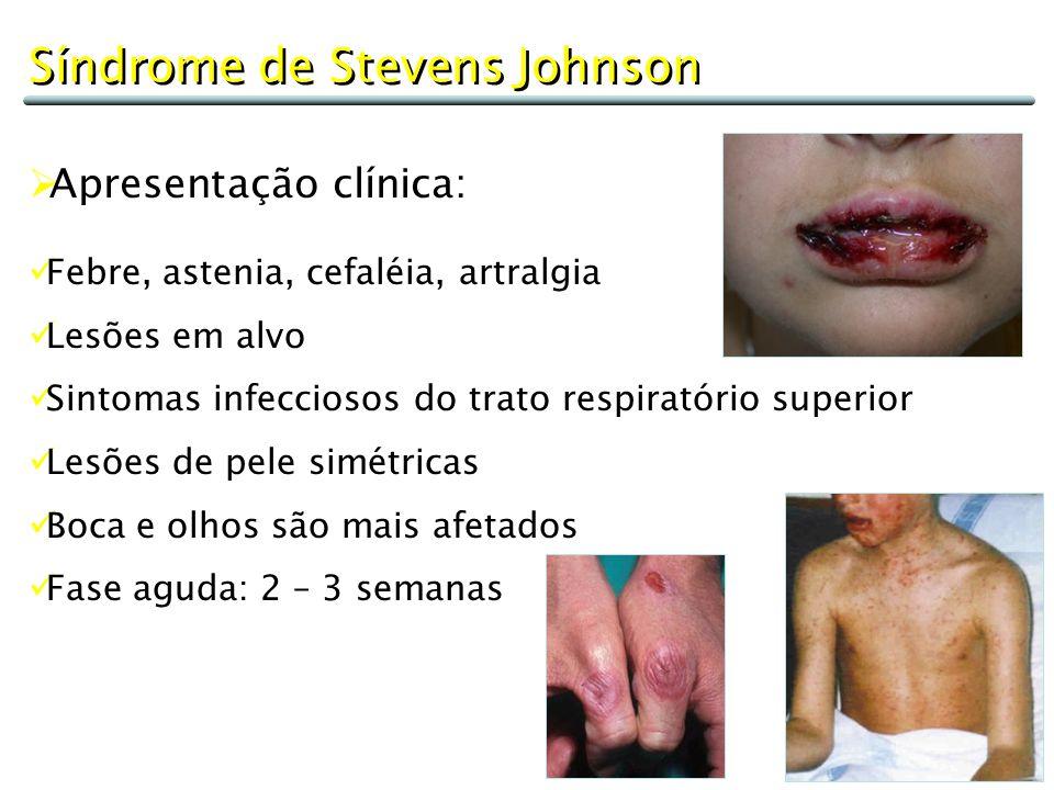 Síndrome de Stevens Johnson  Apresentação clínica: Febre, astenia, cefaléia, artralgia Lesões em alvo Sintomas infecciosos do trato respiratório supe