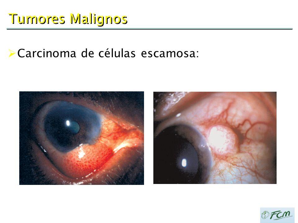 Tumores Malignos  Carcinoma de células escamosa: