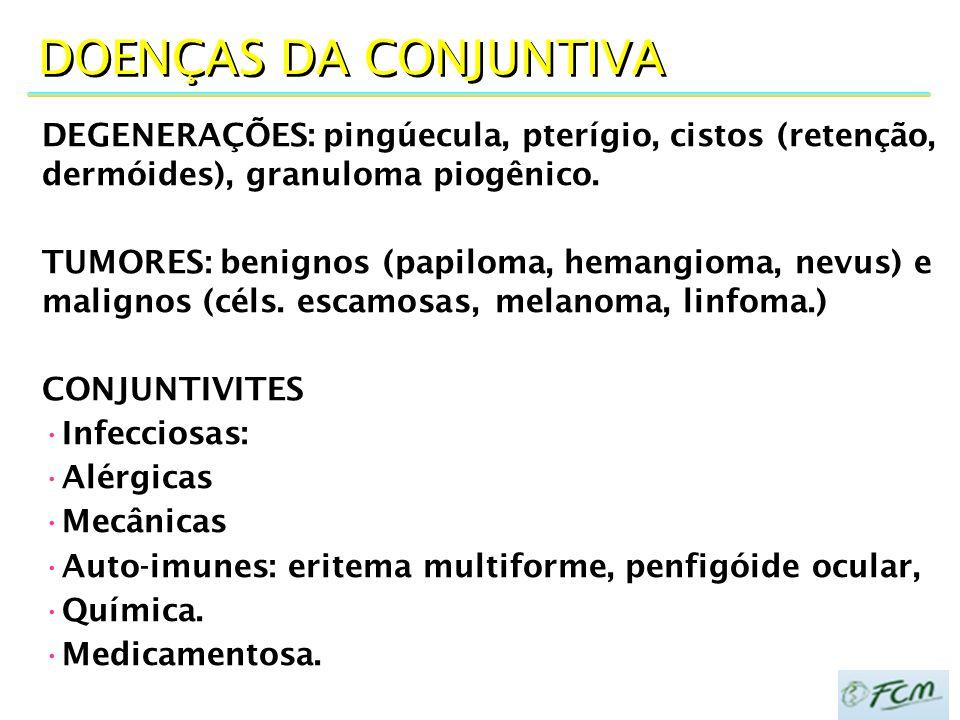 DOENÇAS DA CONJUNTIVA DEGENERAÇÕES: pingúecula, pterígio, cistos (retenção, dermóides), granuloma piogênico. TUMORES: benignos (papiloma, hemangioma,