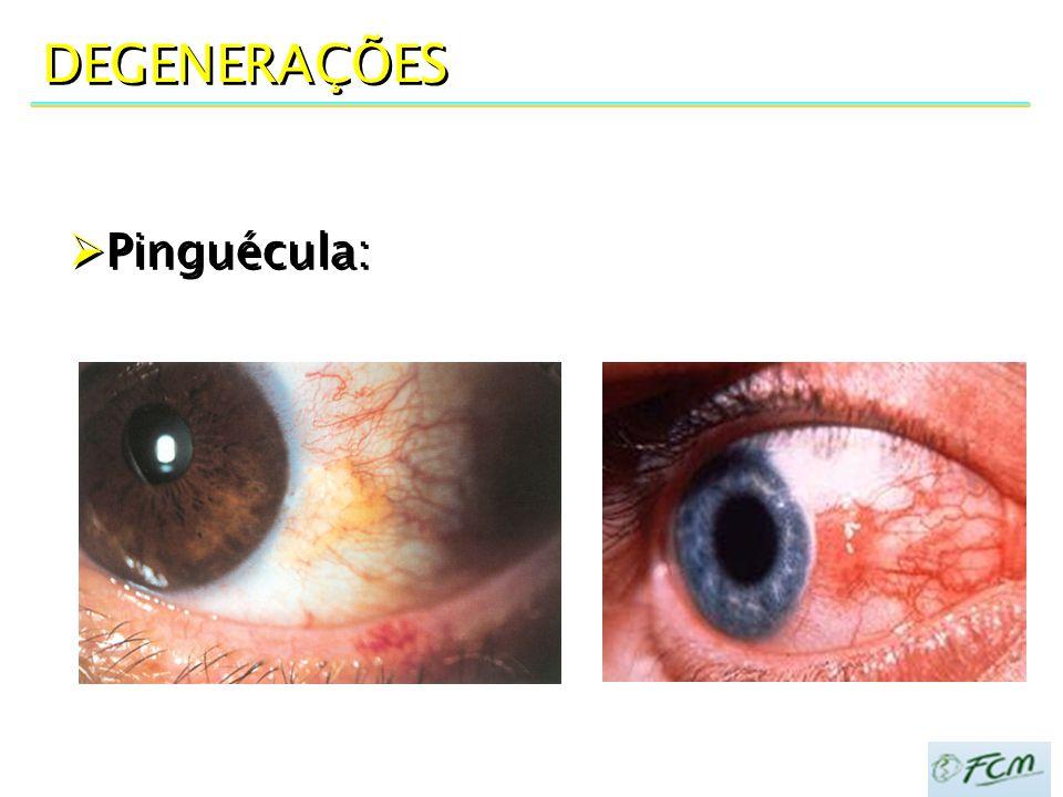  Ceratoconjuntivite Adenoviral INFECÇÕES VIRAIS